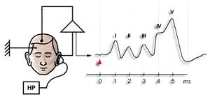 слуховые вызванные потенциалы