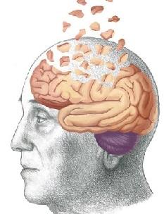 головокружение при деменции
