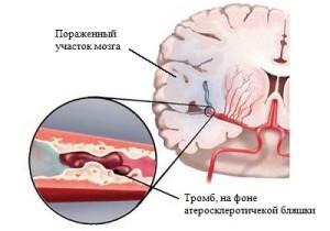 Причины инсульта