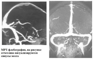 МРТ флебография