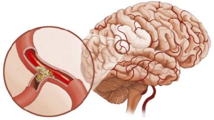 головокружение при атеросклерозе